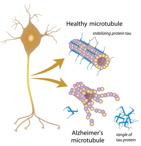 Tau Protein Leads To Neuronal Death in Alzheimer's