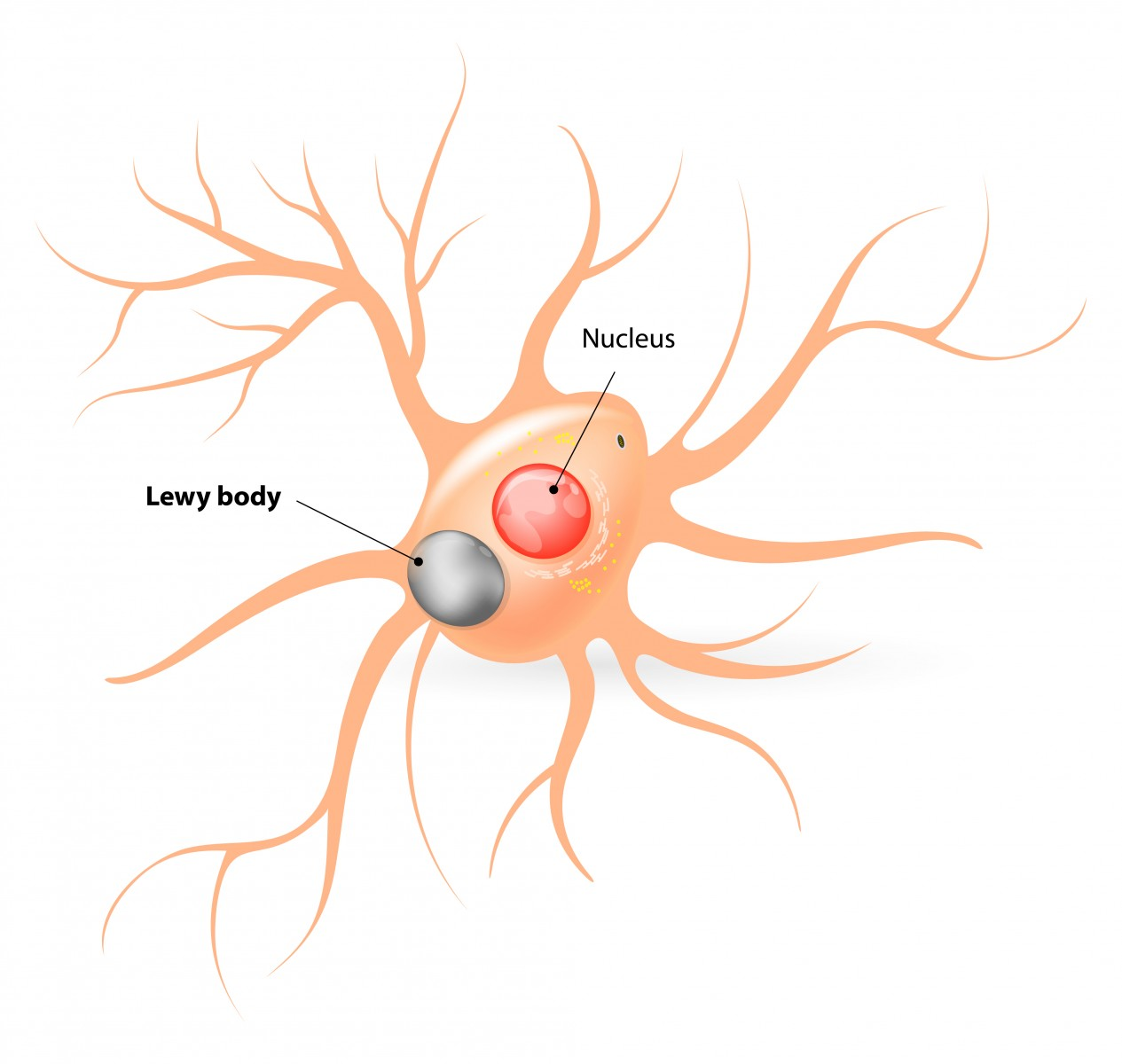 New Insights Into Dementia with Lewy Bodies, Parkinson's Disease