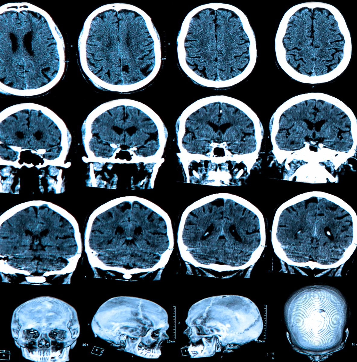 Low-frequency Magnetic Fields Do Not Accelerate Alzheimer's Disease and ALS