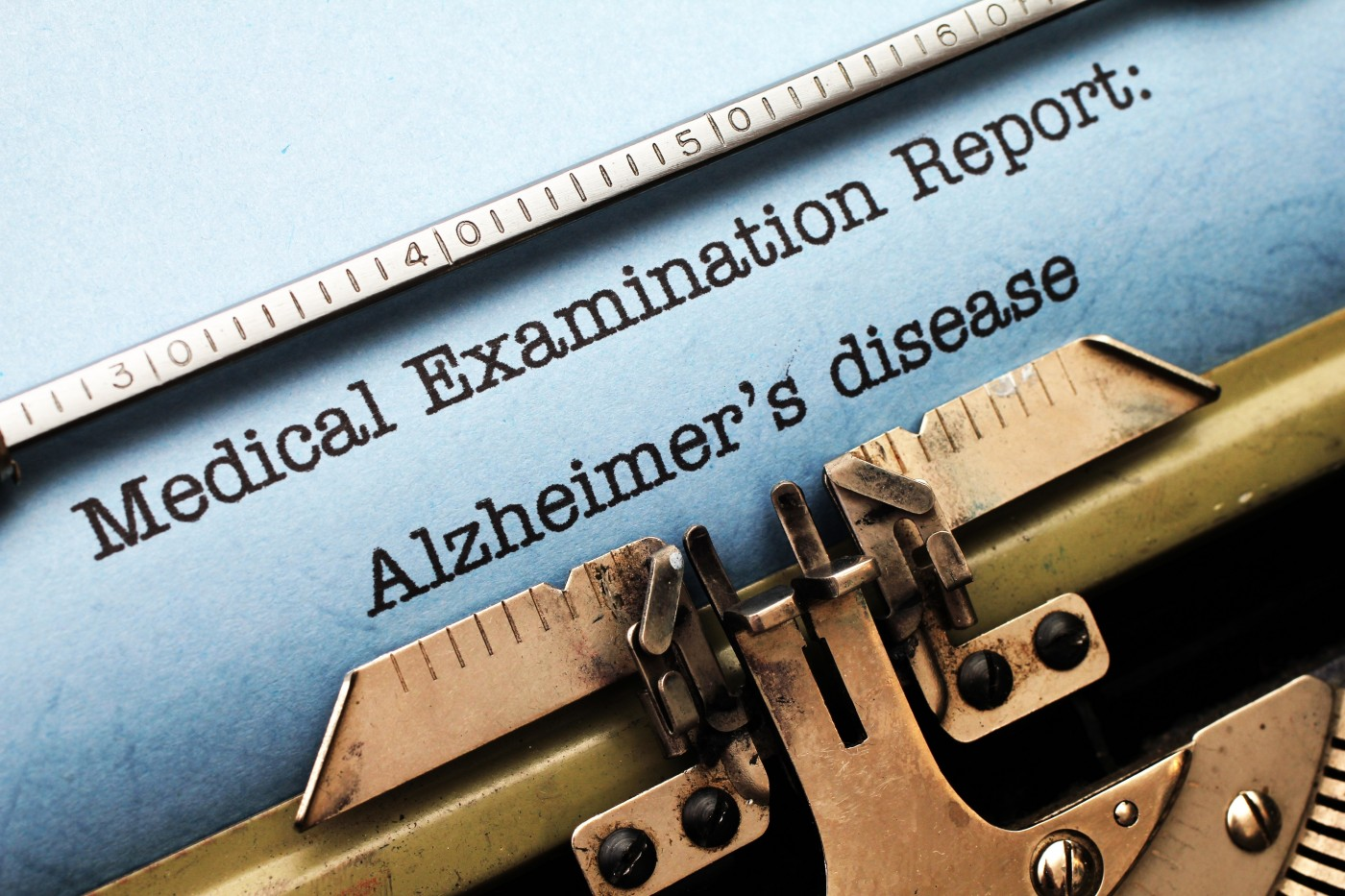 Alzheimer's Association Reports Lack of Disclosure on Disease Diagnosis by Healthcare Providers