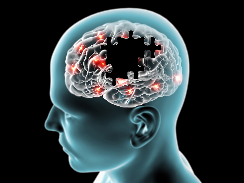 White Matter Differences Identified in Early-stage Alzheimer's Disease, Frontotemporal Dementia