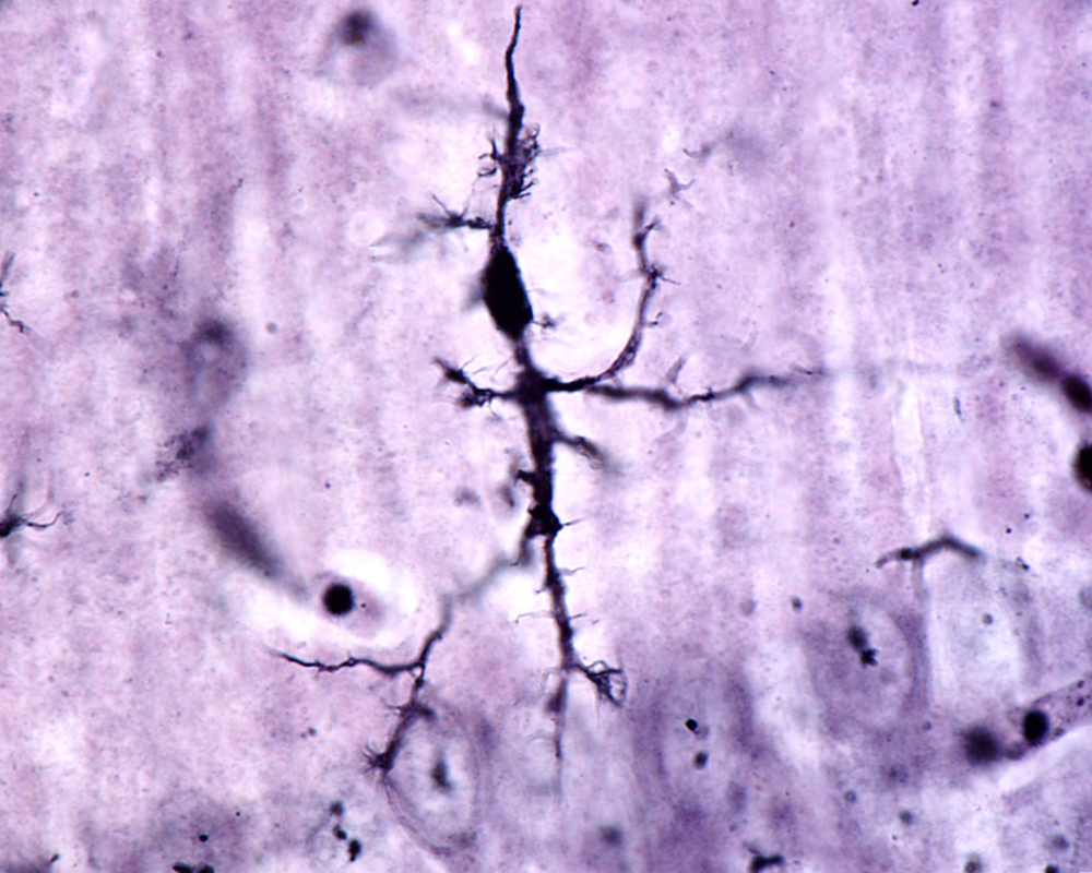Is Iron In The Brain Of Alzheimer's Patients?