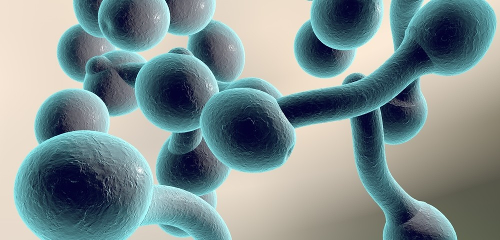 Fungal Infection as a Risk Factor in Alzheimer's Disease