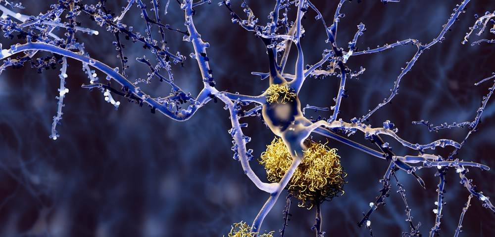 Cerebrospinal Fluid Biomarker Could Help Identify Early Alzheimer's Disease