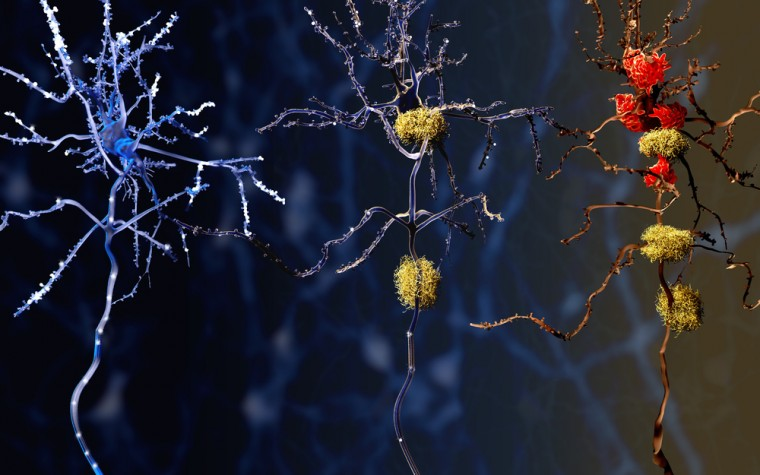 Alzheimer's drug reduces amyloid plaques