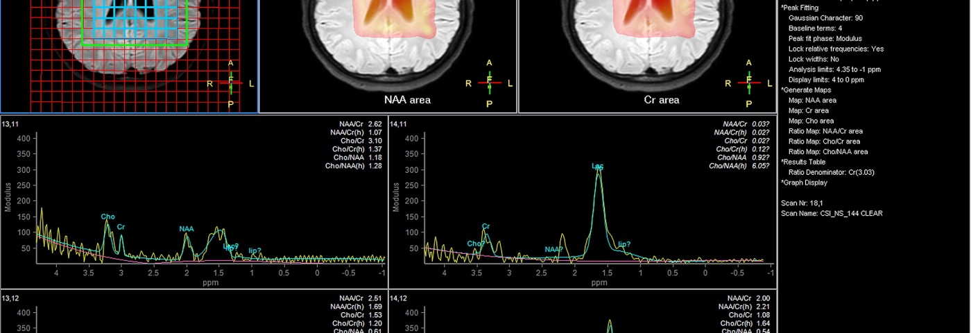 In Alzheimer's Patients, Deep Brain Stimulation Appears to Be Effective and Safe Treatment