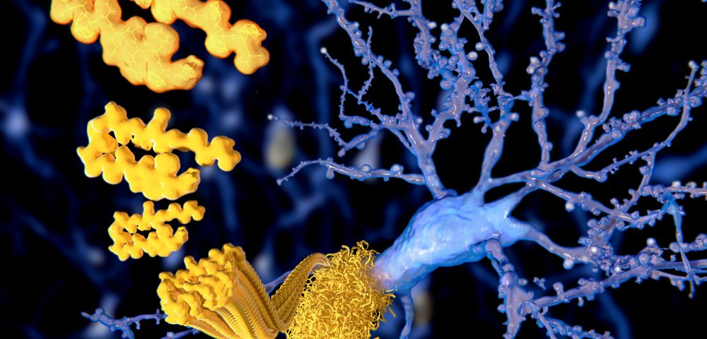 Metabolon and Muses Lab Partner to Advance Platform for Treatment of Early Alzheimer's