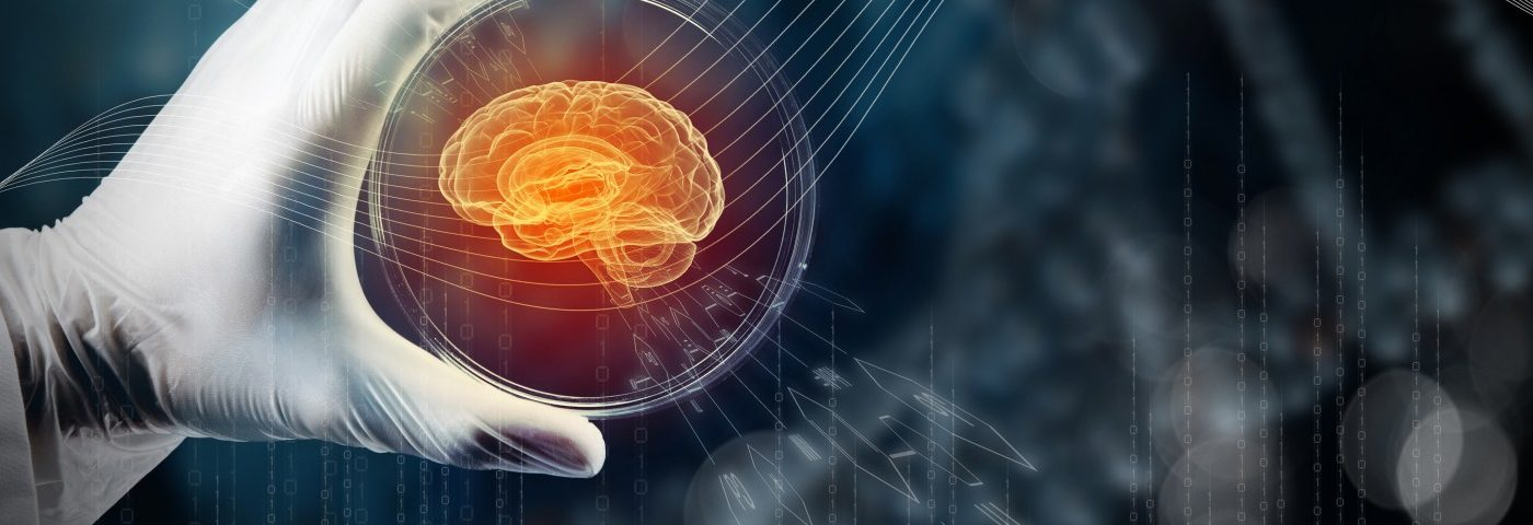 ProMIS Biotech Hopes to Prove Amyloid Theory in Alzheimer's with New Targeted Therapies