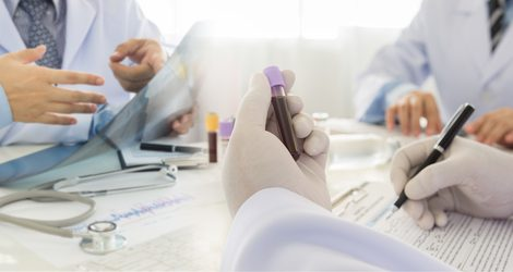 Corplex Donepezil Skin Patch Therapy Moves to Phase 1 Trial