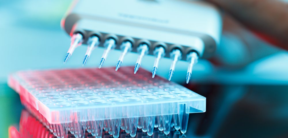 NIH Awards $1.8M to Pain Therapeutics for Work Toward a Diagnostic Blood Test for Alzheimer's