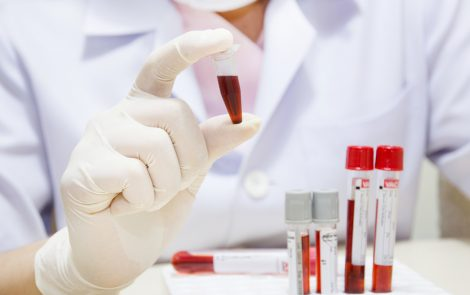 Blood Test Seen to Identify Alzheimer's with Accuracy, Including Early-stage Disease
