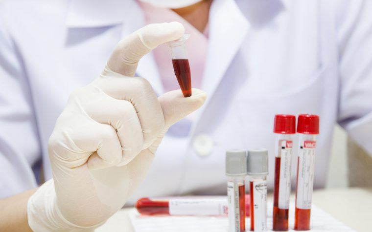 blood test for Alzheimer's