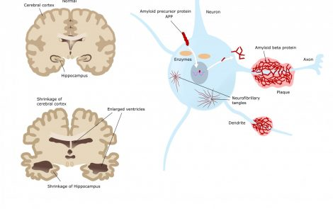 ProMIS's PMN310 Antibody Therapy Binds Only to Toxic Forms of Amyloid Beta, Study Reports